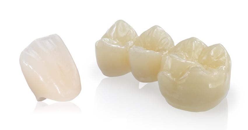 Ceraniche dentali  Roma offerte Centri Dental.it