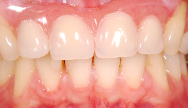 alternativa a ponti e corone e impianti dentali Centri Dental Roma solo dentisti e studi dentistici di qualità.