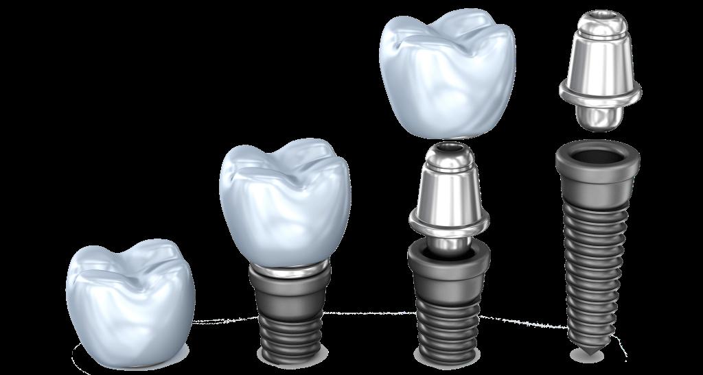 impinti dentali di qualità studi dentistici Centri Dental.it  Roma