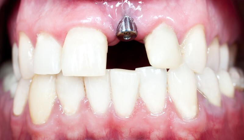 impianti dentali non posizionati correttamente cause