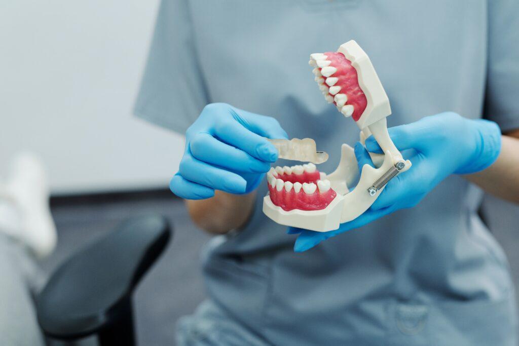 protesi dentale totale novità