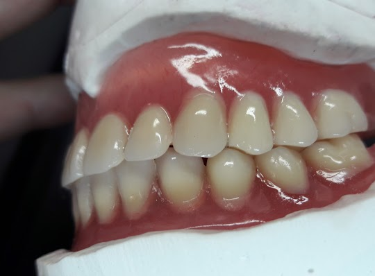 protesi dentale bobile novità Centri Dental.it